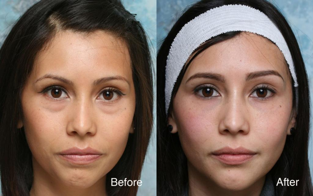 eyebag surgery before and after