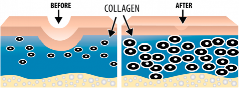 collagen-treatment