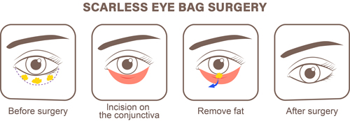 scarless eyebag removal singapore