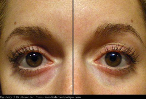 eye bag removal in singapore