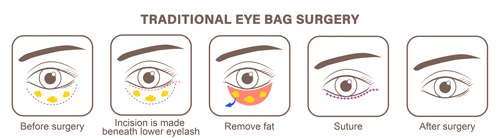 traditional eye bag removal