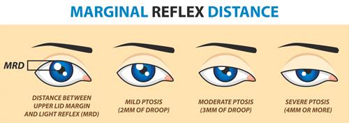 marginal-reflex-distance-ptosis