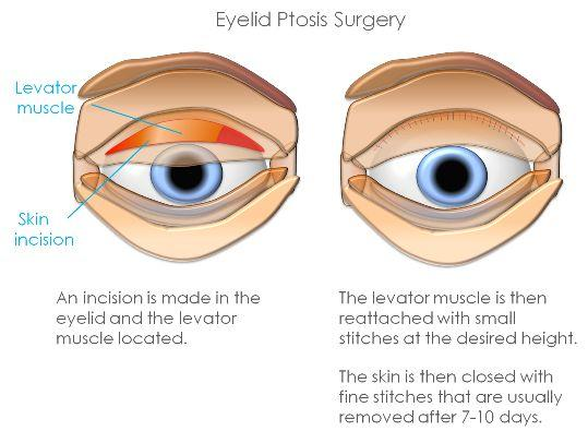 eyelid ptosis surgery explanation infographic