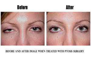 woman before & after ptosis surgery