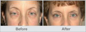 before after ptosis