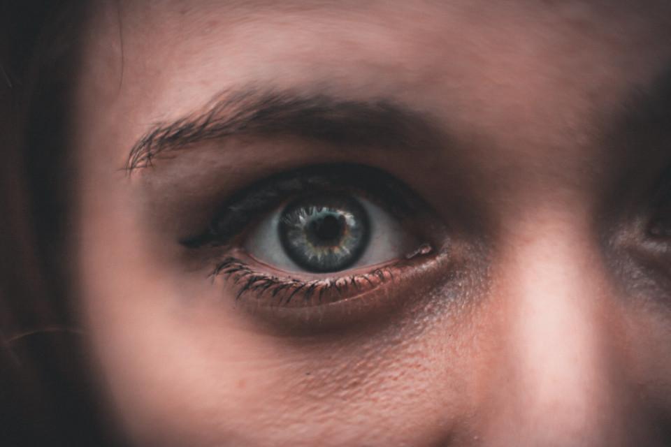eye bags woman