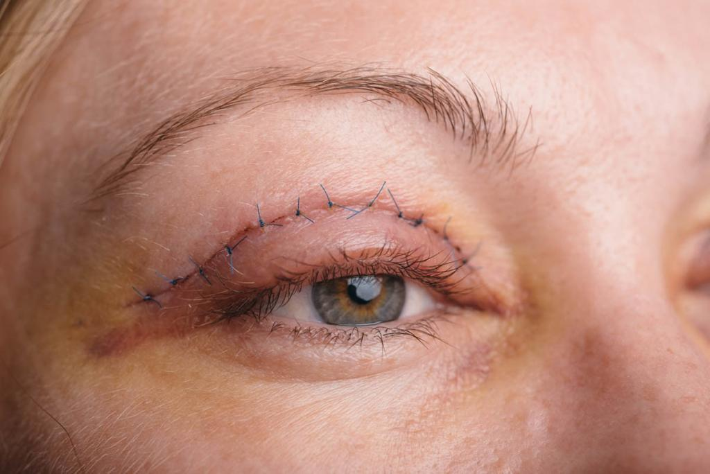 Blepharoplasty of the upper eyelid