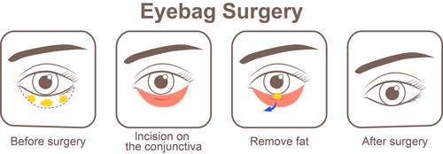 eyebag surgery diagram