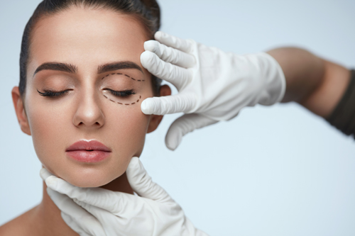 blepharoplasty-singapore