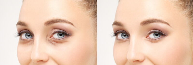 what to expect blepharoplasty