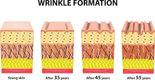 wrinkle-formation