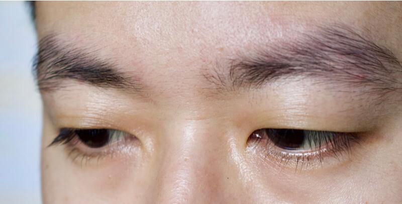 asian monolid blepharoplasty