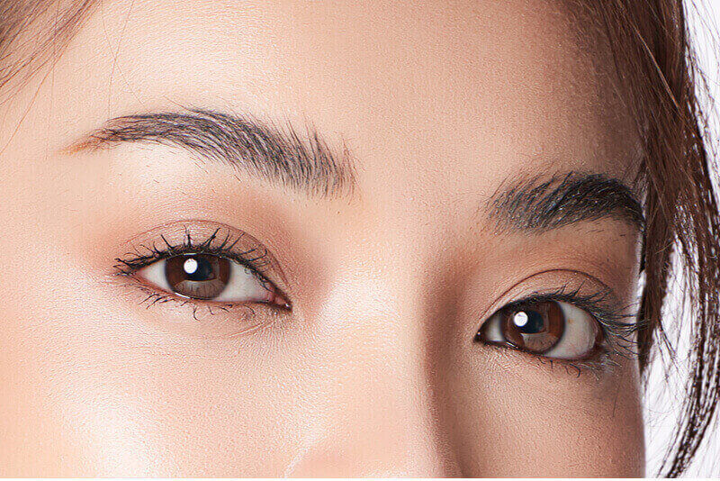 double eyelid surgery singapore results