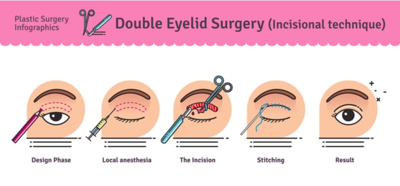 incisional double eyelid surgery