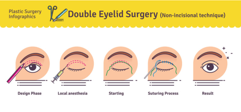 non incisional double eyelid surgery