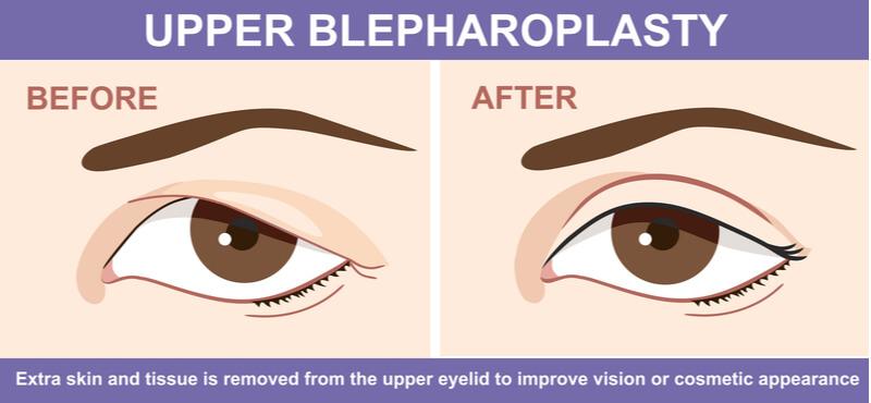Upper Blepharoplasty treatment